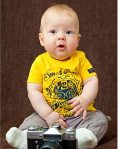 你家宝宝容易过敏吗?别把过敏不当回事!