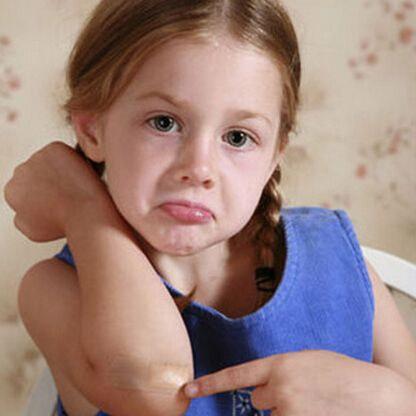 家有宝贝2-4岁宝宝身上的小伤口应及时处理