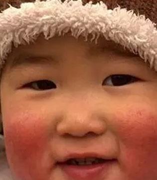 宝宝冬季皮肤护理指南