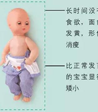 春天食欲差 儿科专家教你拯救宝宝的胃口