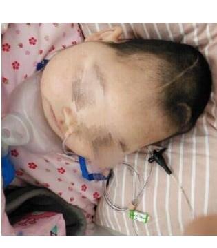 女童遭生母虐待数次脑死亡 脑死亡意味什么