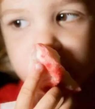 春季宝宝流鼻血该怎么办  教你几招巧应对