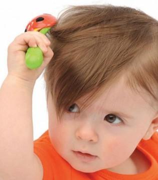 宝宝枕秃爸妈们勿惊慌  合理补钙才能巧治疗