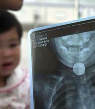 孩子吞下异物怎么办  发生窒息时一定要立即送医