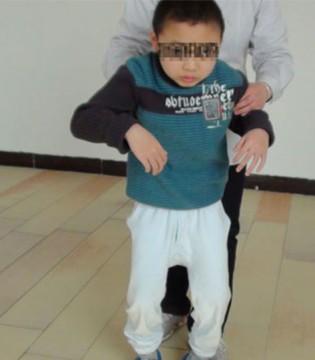 治疗小儿脑瘫的新方法  很多患儿家长不知情