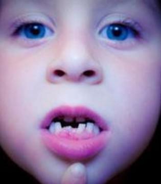 孩子为什牙齿长不整齐 影响孩子牙齿发育的几大因素