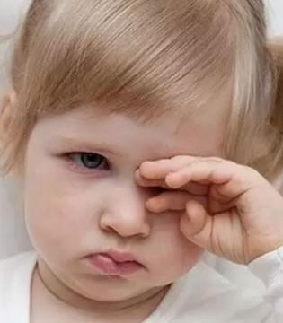保护宝宝眼睛刻不容缓  妈妈要注意宝宝眼部清洁