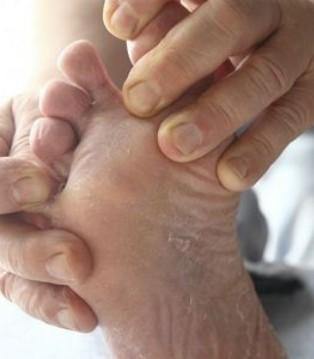 手脚为什么会脱皮 吃这些食物能缓解
