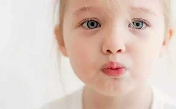 冬天嘴唇破皮 怎么帮宝宝挑选润唇膏呢