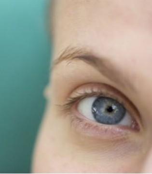 做完埋线双眼皮之后多久可以消肿