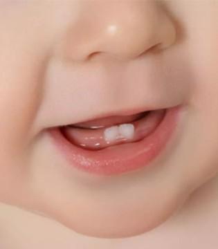 宝宝长牙缓慢怎么办 需要家长们了解以下几点