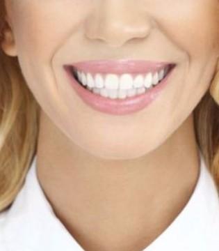 冷光美白牙齿前需要了解的小常识