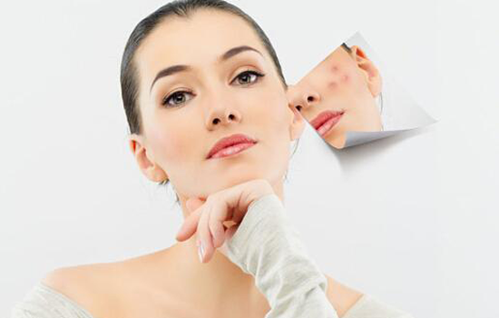 脸上的痘坑有自愈的可能吗 ? 远离疤痕的方法