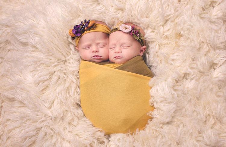 孩子白化病和染色体有关系? 新生儿白化病如何护理?