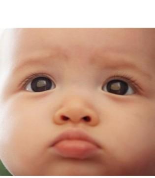 新生儿黄疸怎么护理 几种退黄方法了解一下