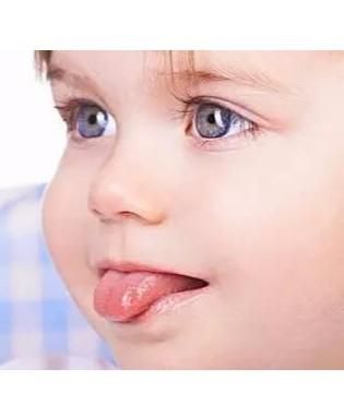 宝宝烂嘴角怎么办?家长护理要知晓3件事