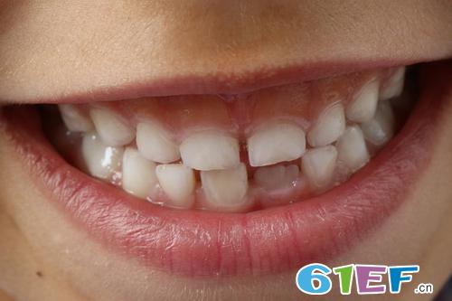 儿童蛀牙危害大 如何帮助孩子防蛀牙呢?