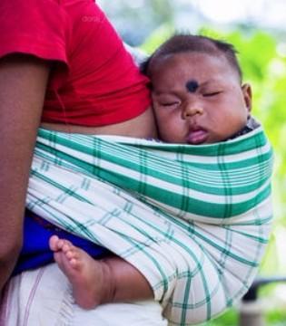 哮喘严重危害人类健康的常见病 婴幼儿哮喘症状